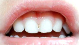 Молочные зубы и кариес