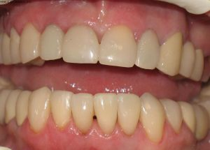 Коронки на передние зубы. Какие лучше?
