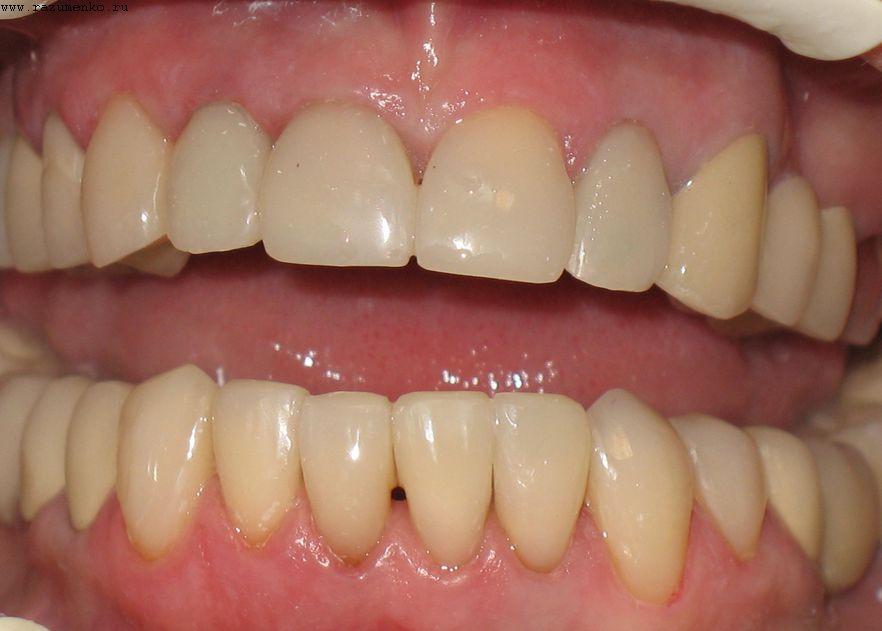 Поставка коронки на зуб