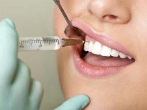Про лечение зубов