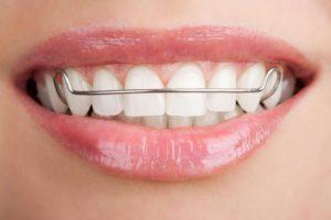 Зубы на пластине